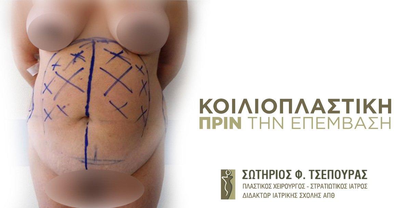 Before-ΚΟΙΛΙΟΠΛΑΣΤΙΚΗ