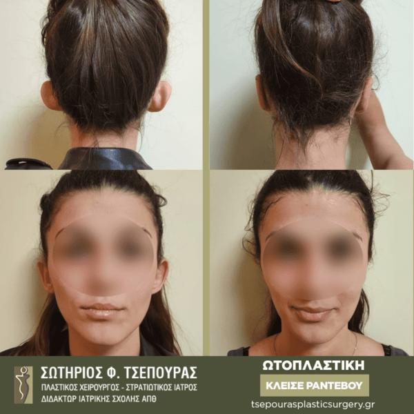 ωτοπλαστικη θεσσαλονικη αφεστωτα ωτα πλαστικος χειρουργος θεσσαλονικη τσεπουρας σωτηριος