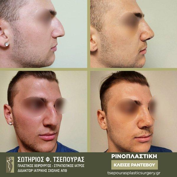 Ρινοπλαστική Ανδρών Θεσσαλονίκη Πλαστικός Χειρουργός Τσέπουρας Σωτήριος